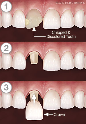 Dental Crowns - Step by Step.
