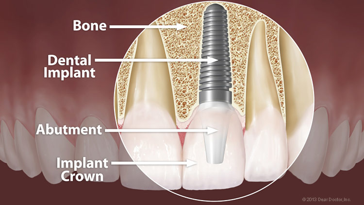 Dental Implants David White Dds Reno Nv