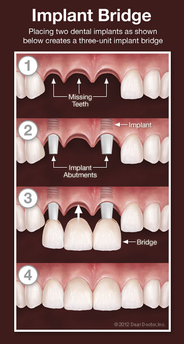 What does a dental bridge cost