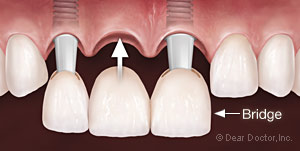 Dental Implant Bridge.