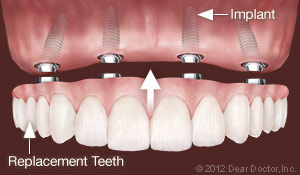 clovis ca dental implants