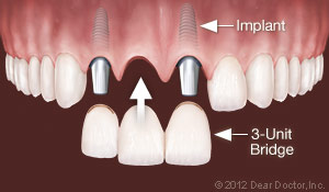 Dental Implants Replace Multiple Teeth.