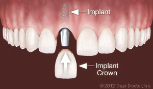 clovis dental implants