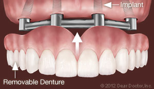 denture implants clovis ca