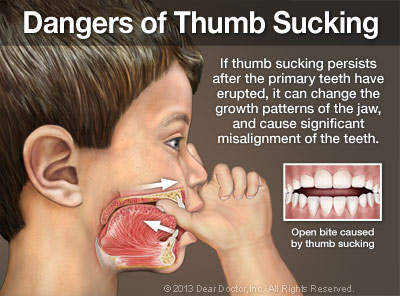 Dangers of Thumb Sucking Poster