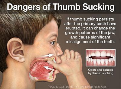 Dangers of Thumb Sucking.