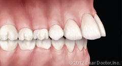 Protruding teeth braces