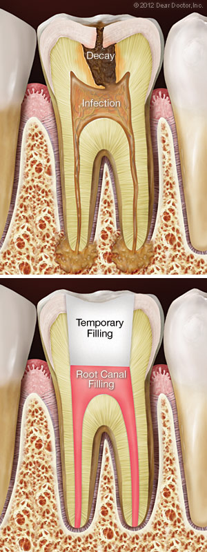 Image showing a decaying tooth in need of root canal treatment and a tooth after having been treated