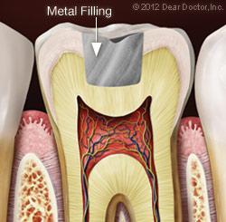 Metal Filling.