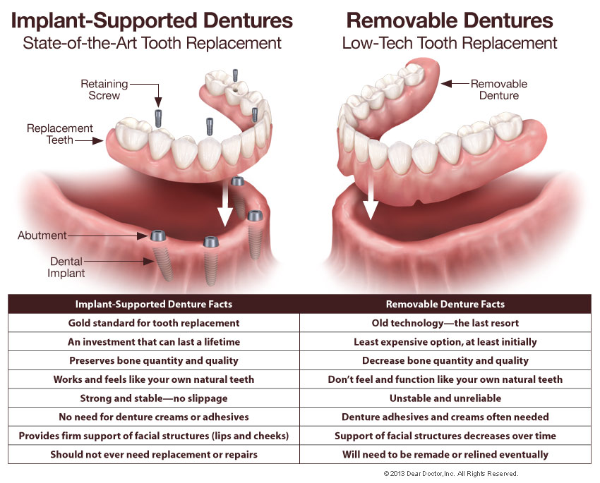 Fixed Dentures | Oral Surgery & Dental Implant Center of