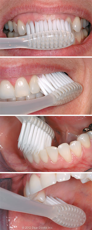 Image displaying how to brush your teeth.