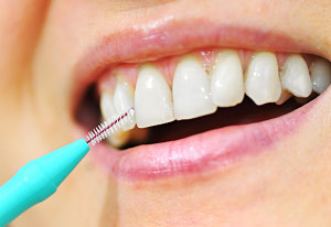 Interdental cleaning.