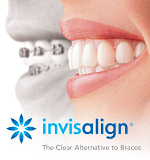 Invisalign-Clear Braces