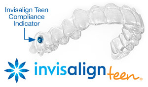 Image of Invisalign teen with a compliance indicator