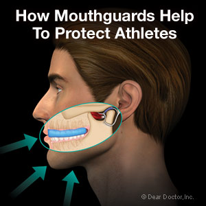 Athletic mouthguards.