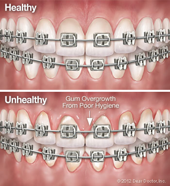 Healthy vs unhealthy teeth and gums