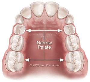 Narrow palate.