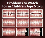 Photo Of A Poster Illustrating Common Pediatric Dentistry Issues In Westfield, New Jersey