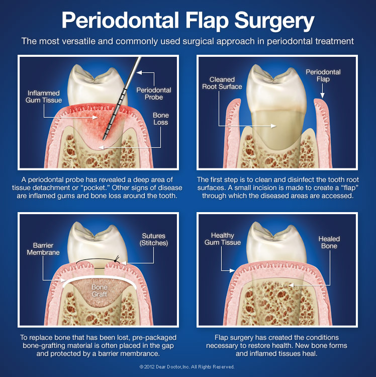 Periodontal Flap Surgery Stratford Orthodontics