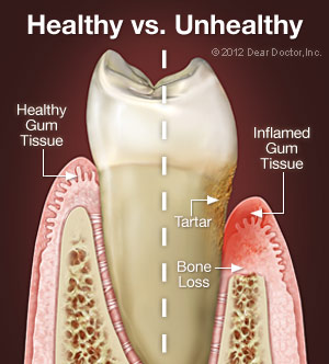 Periodontal Disease. Gum disease in Port Orange, FL