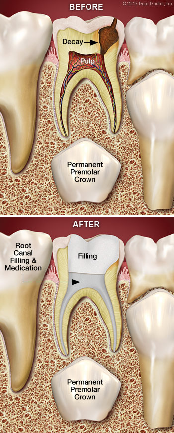 Root canal treatment for children.
