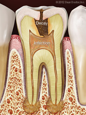 Decayed tooth with infection needing root canal treatment.