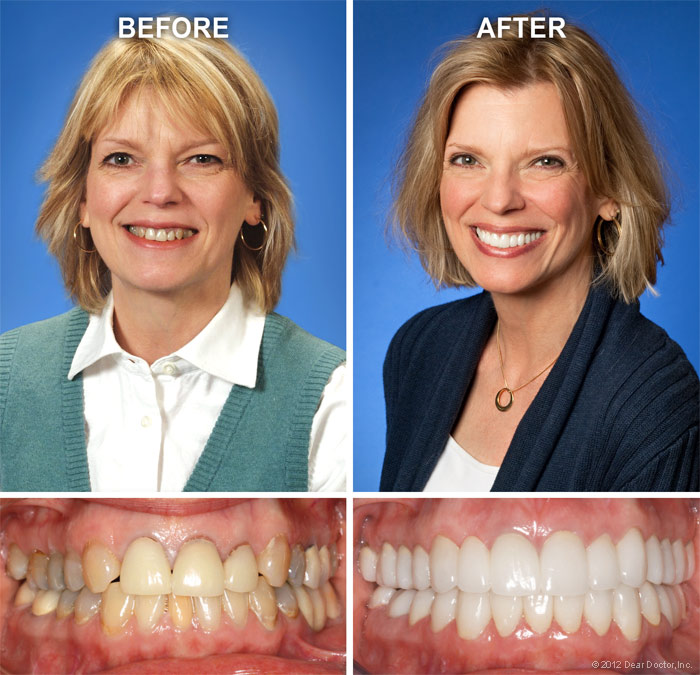 cosmetic-dentistry-before-after-large.jpg
