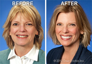 Image showing the before and after results of Cosmetic dentistry treatments