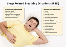 Sleep Related Breathing Disorders.