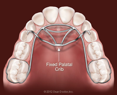Fixed Palatal Crib Appliance http://www.laidlawortho.com/treatment-info/thumb-and-finger-appliances.aspx