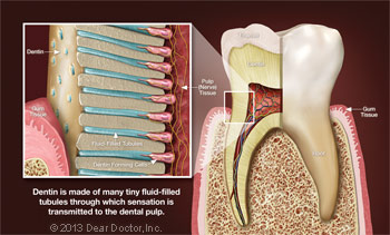 Blowup of Dentin.