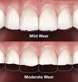 Tooth Wear.