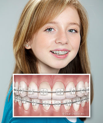 Seems Info on braces for adults mistake