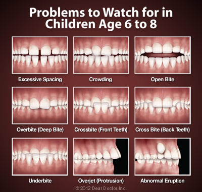 Orthodontic Problems.