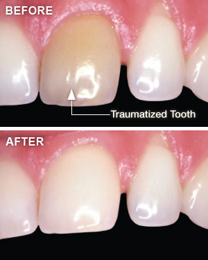 Whitening traumatized teeth.