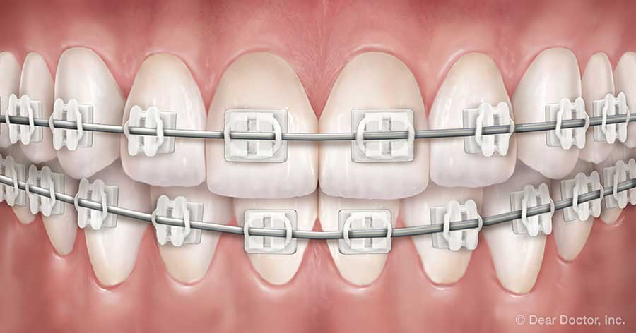 clear braces feature brackets made of ceramic or composite materials which blend in with your teeth making them harder to notice theyre suitable in many