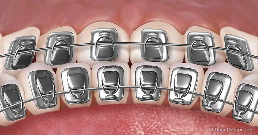 Lingual braces.