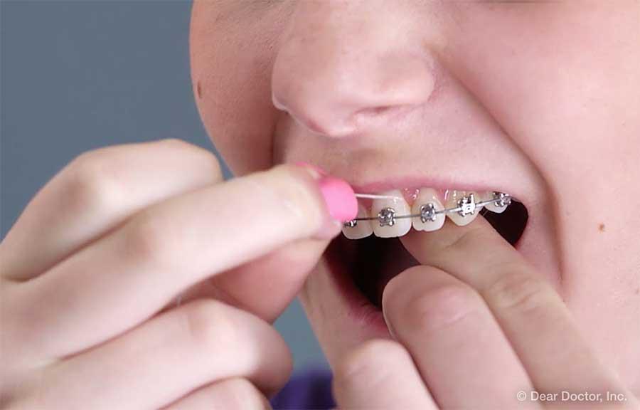 Flossing braces.