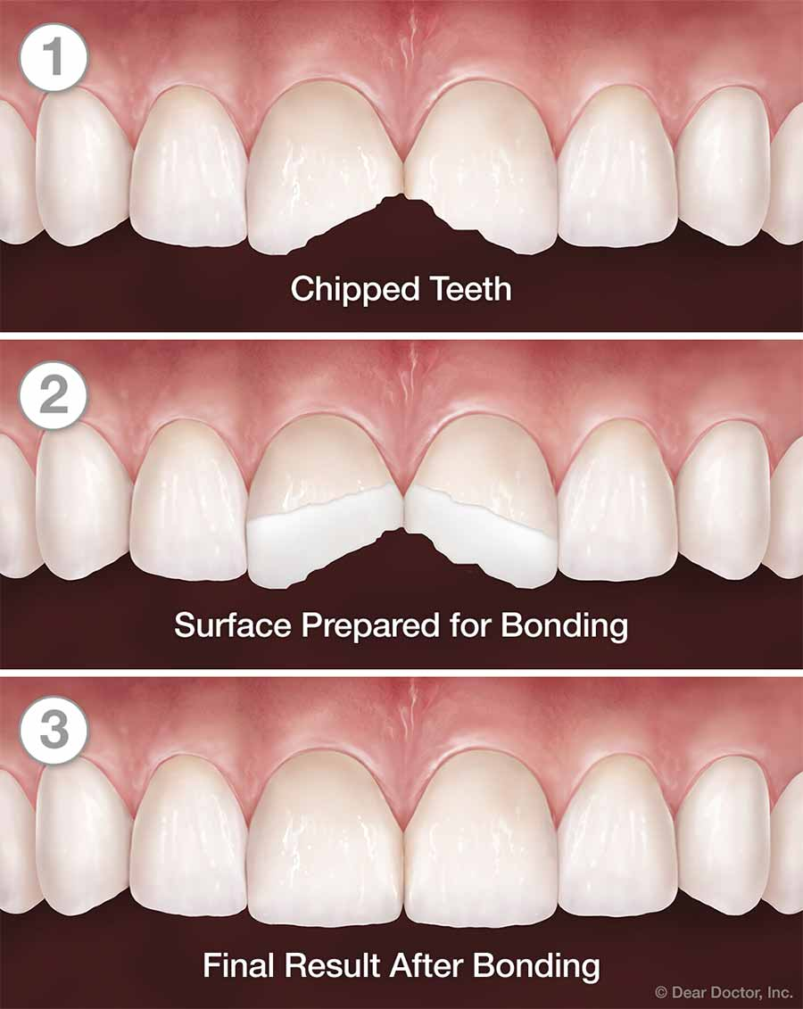 Tooth Bonding Step by Step.