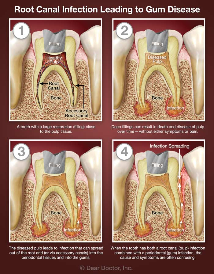 Root Canals and Gum Disease | Canal View Dental Surgery