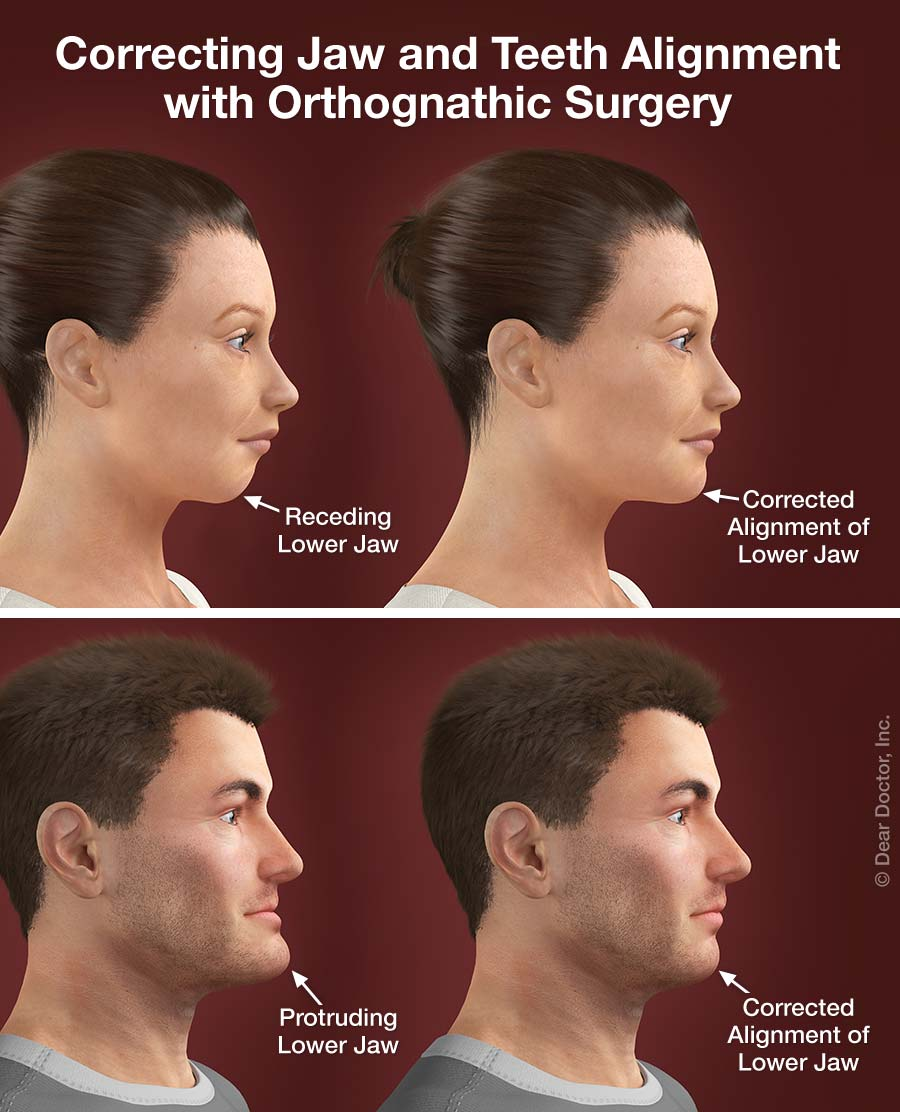 Corrective Jaw (Orthognathic) Surgery.