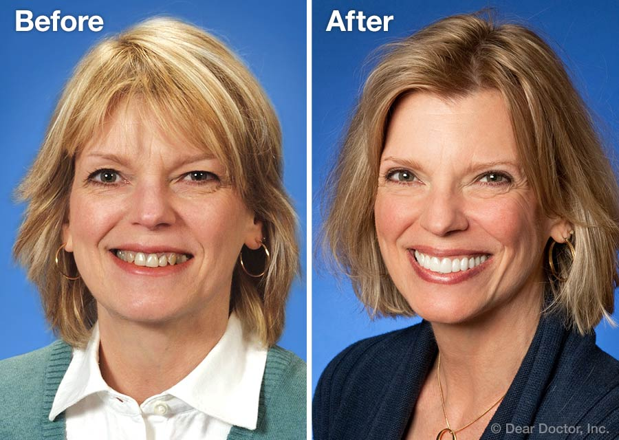 Before and after our teeth whitening in Knox County, IL