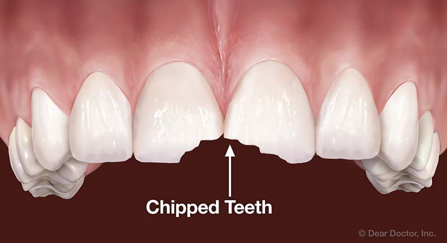 Chipped Teeth.