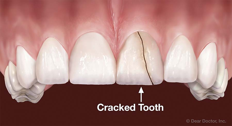 Cracked Tooth.