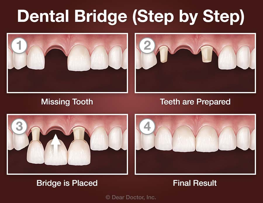 Dental Bridge - Step by Step.