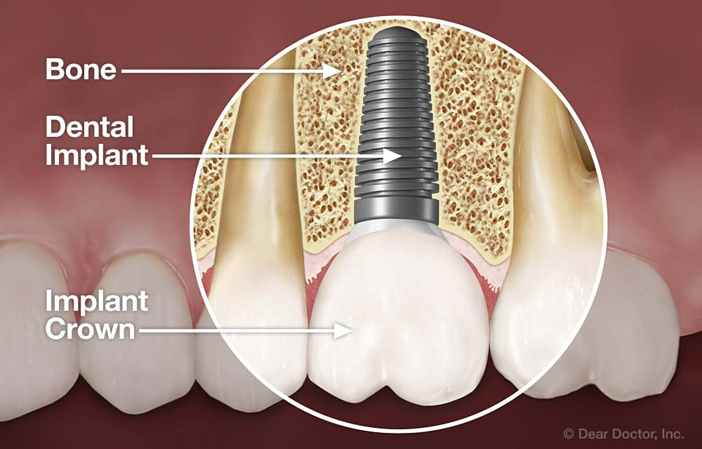 Dental Implants Info Show Your Grin Dental