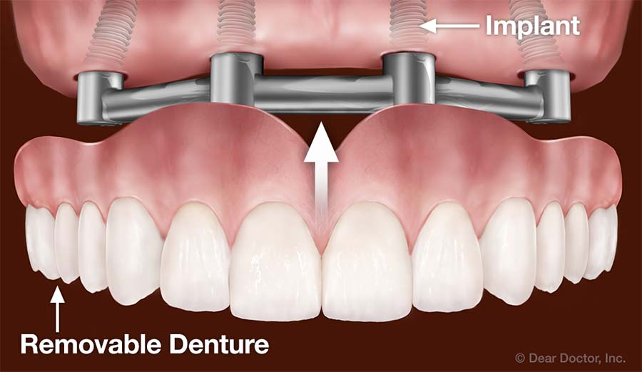 Dental Implants Support Removable Dentures.