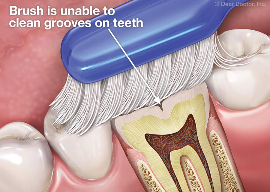 Toothbrush unable to clean grooves in teeth.