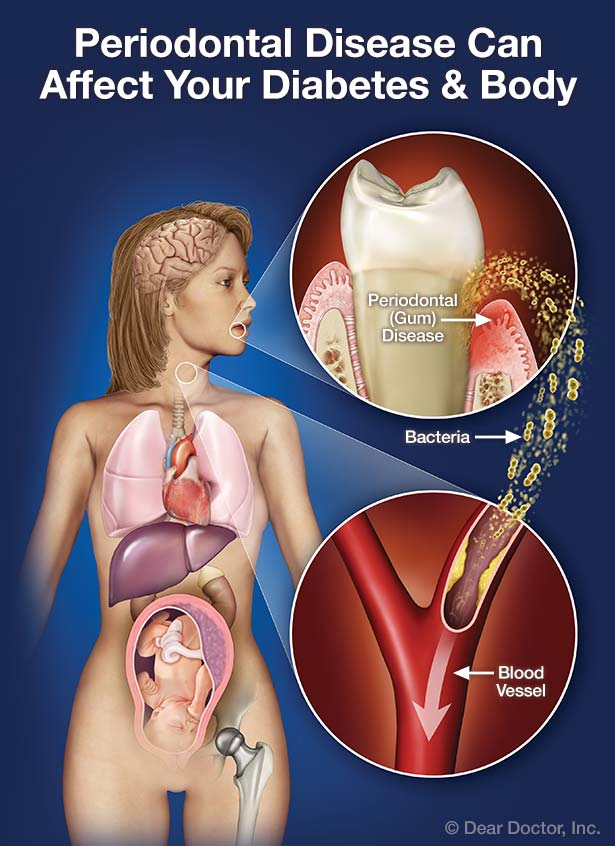 Periodontal disease can affect your diabetes and body.