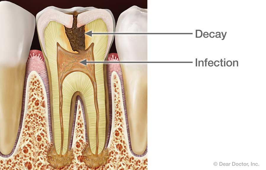 Root Canal Infection.